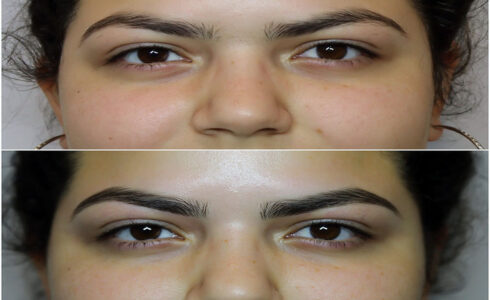 img_9027brows_2x
