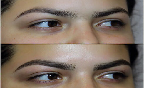 img_9029brows