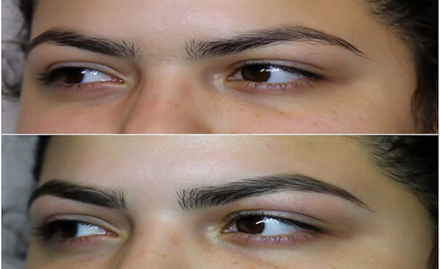 img_9028brows